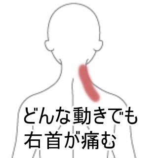 首 の 痛み