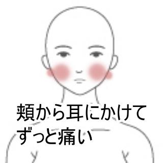 ツボ 三叉 神経痛