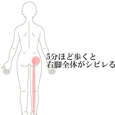 脊柱管狭窄症・痺れ
