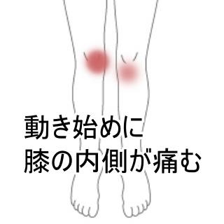 膝 の 痛み 湿布