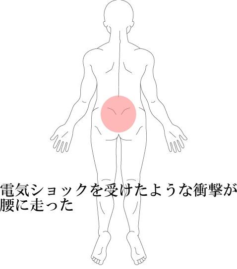 ぎっくり腰1