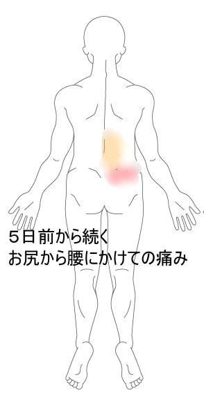 痛み 背中 右側 の