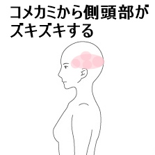 コメカミ 側頭部 頭痛
