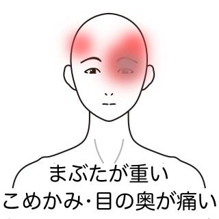 痛い こめかみ 【医師監修】こめかみの頭痛、左側が痛いときの原因は? めまいや吐き気を伴う場合は?