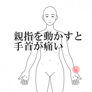 親指の付け根 腱鞘炎