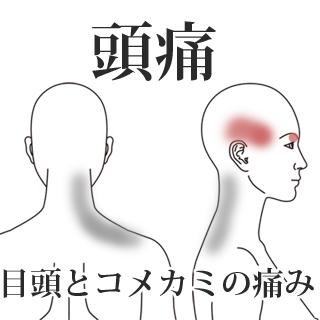 鍼による頭痛の改善例