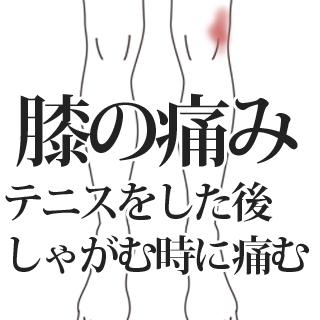 鍼施術による膝の痛みの改善例