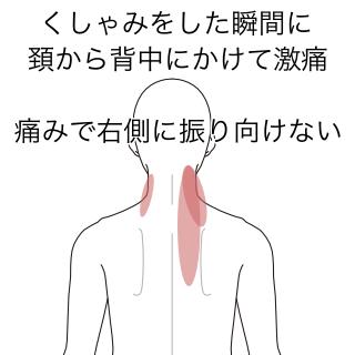 右 背中 痛み