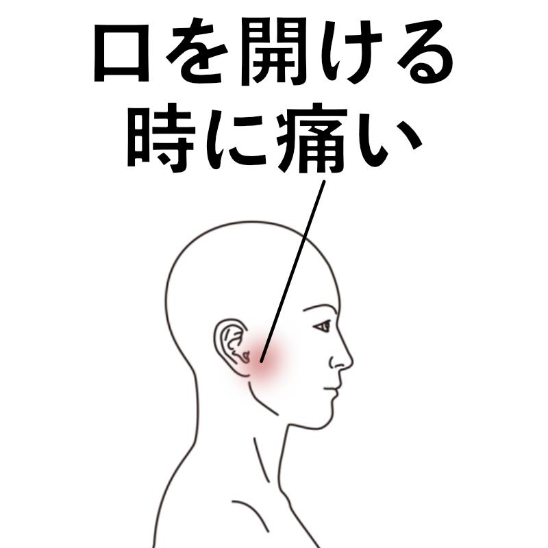 下 痛い の 顎