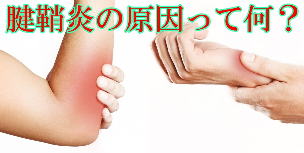腱鞘炎の原因って何?