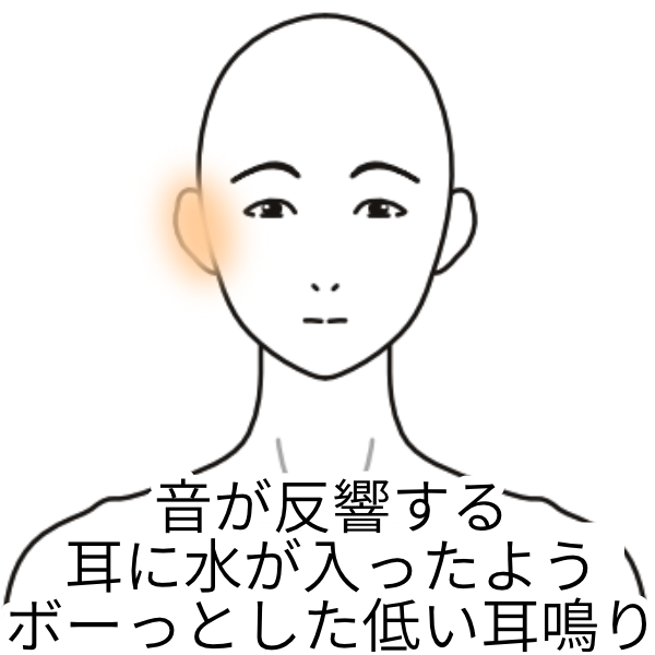 障害 難聴 音 型 性 低音 感