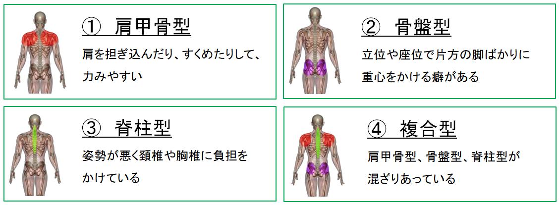 腱鞘炎 4つの特徴