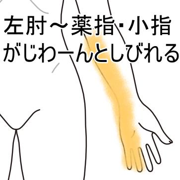 小指 しびれ 左手