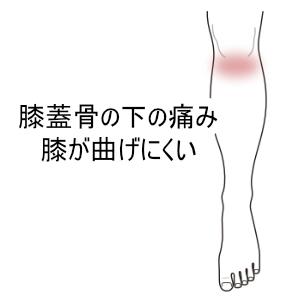 膝蓋骨の下の痛み
