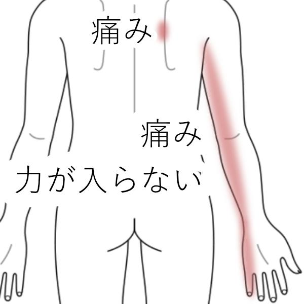 症例_KY_腕の小指側のラインが痛み力が入らない
