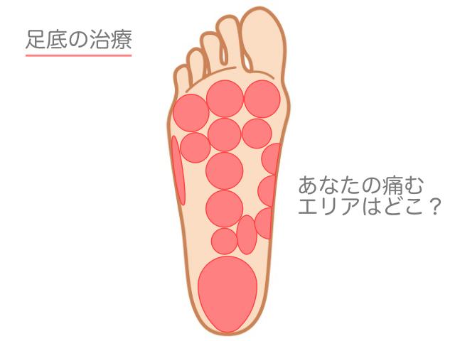 足底の治療 ツボで改善が期待できる「足裏の痛み」エリア