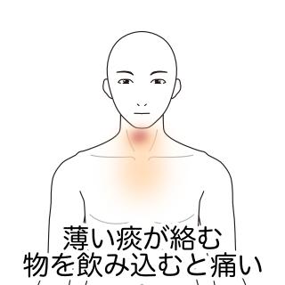痛み 喉 違和感 の