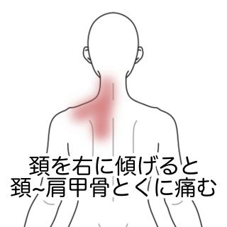 痛い が 右 の 肩 甲骨