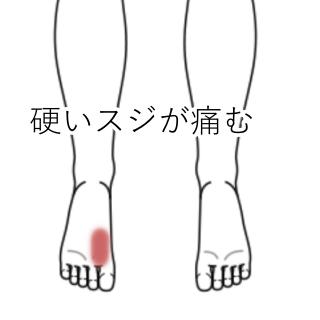 足 の 親指 の 裏 痛い