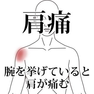 鍼治療による肩痛の改善例