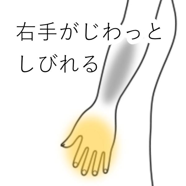 痺れ 右手 の