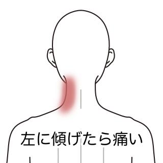 左上 痛い 背中 が