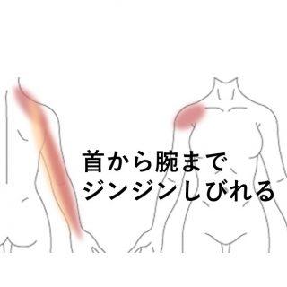 から 腕 痛い 肩 が