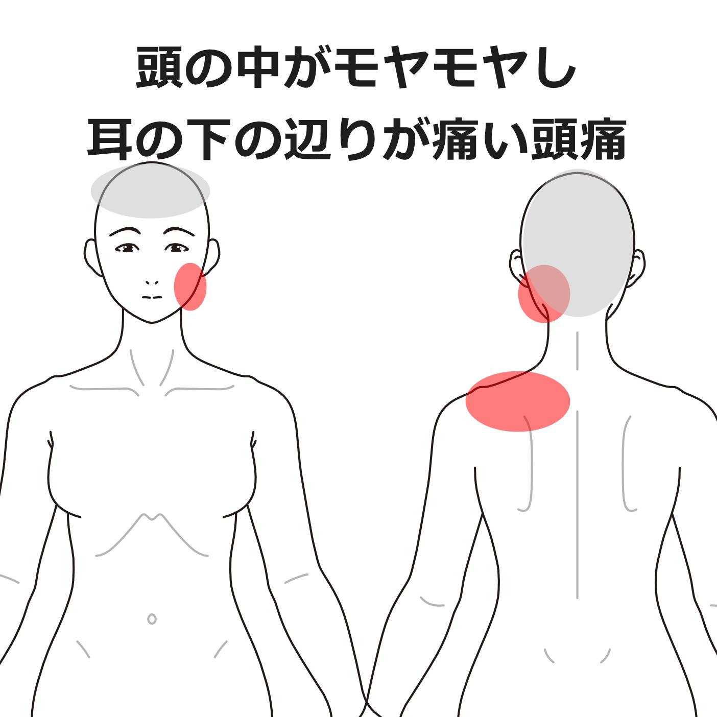 痛い が 甲骨 の 下 左肩 あたり