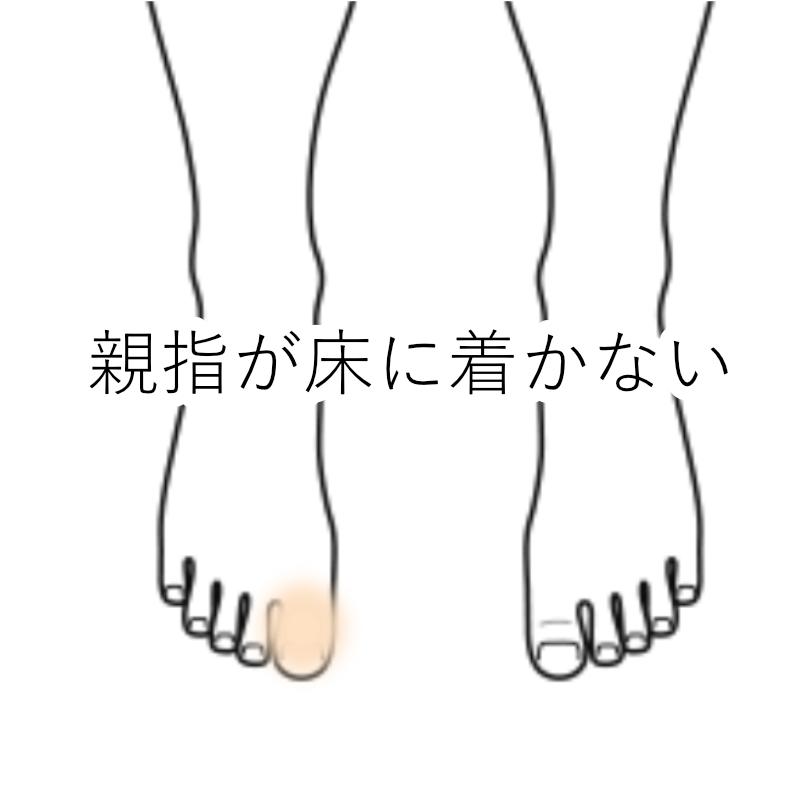 鍼灸症例「親指が床に着かない」