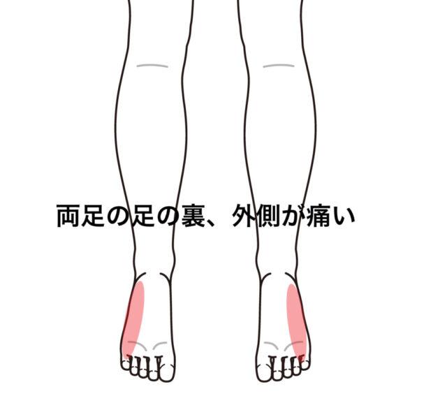 外側 裏 痛い の 足 なぜ?足の付け根の外側が急に痛い…!これ大丈夫?病院は何科?