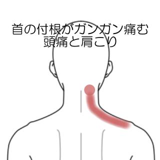 こり 頭痛 首 肩こり頭痛にご用心!原因となる習慣の実例を紹介 [肩こり]