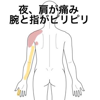 痛い 肩 が から 腕 2ヶ月前から右肩の痛み、特にじっとしていると肩がうずく痛み