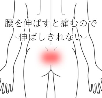 腰を伸ばすと痛む