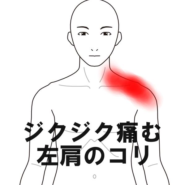 重い 左肩