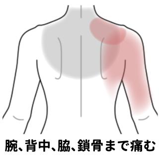 痛い 肩 が から 腕 更年期障害?腕の痛みに悩んでいます。