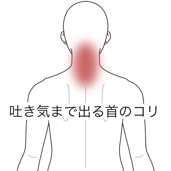 症候群 ツボ 出口 胸郭