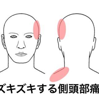 側頭部頭痛